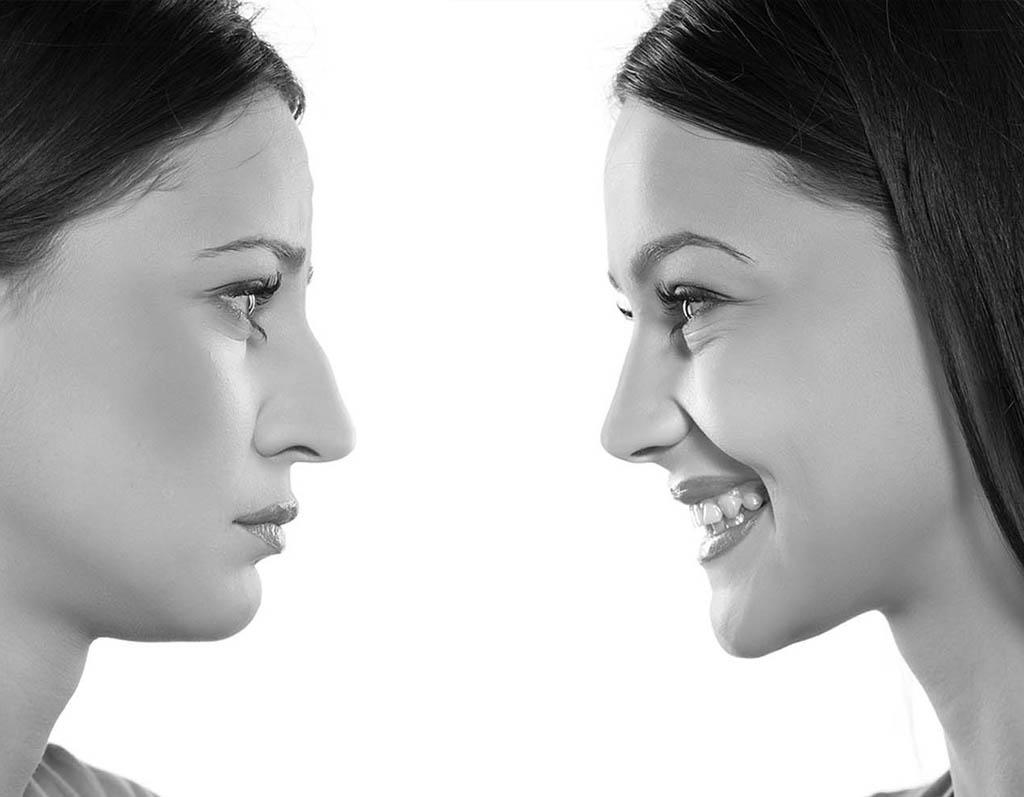 Chirurgie Esthétique de visage en Tunisie