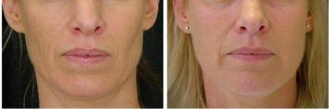 lipofilling visage france avant apres